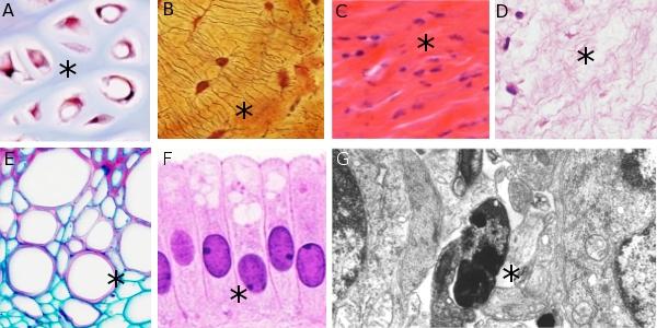 En esta imagen se presentan ejemplos de distintos tipos de matrices extracelulares teñidas con diferentes colorantes. Los asteriscos señalan la matriz extracelular. A) Cartílago hialino, B) Matriz ósea compacta, C) Conectivo denso regular (tendón), D) Conectivo gelatinoso del cordón umbilical, E) Paredes celulares del sistema vascular de un tallo de una planta, F) Células epiteliales. Obsérvese que prácticamente no hay sustancia intercelular, G) Imagen de microscopía electrónica del tejido nervioso donde prácticamente no existe matriz extracelular