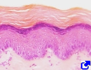 Stratified squamous keratinized epithelium