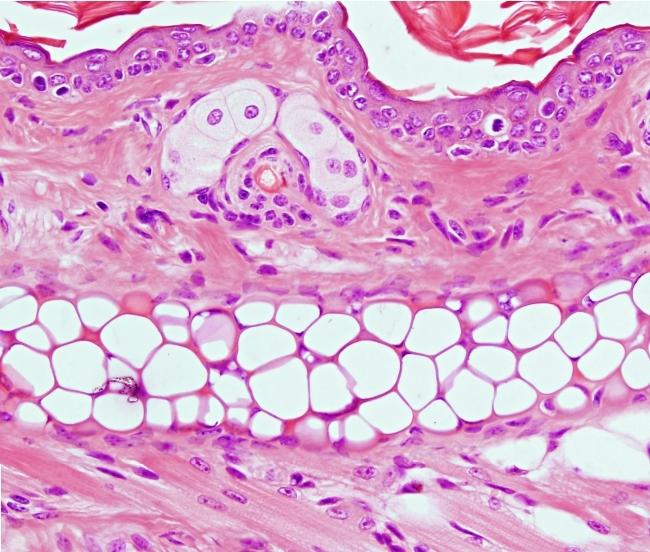 Este tipo de cartílago aparece en el oído externo, en el conducto auditivo externo, trompa de Eustaquio, epiglotis y en la laringe. Posee poca matriz extracelular, la cual está formada principalmente por fibras elásticas muy ramificadas, que contribuyen a las propiedades mecánicas de este tejido.