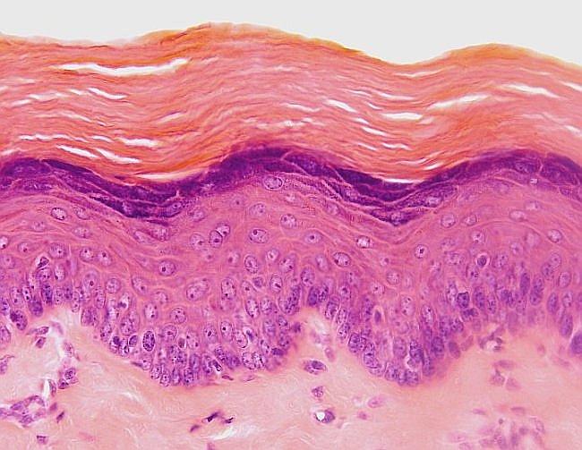 Imagen de un tejido epitelial estratificado