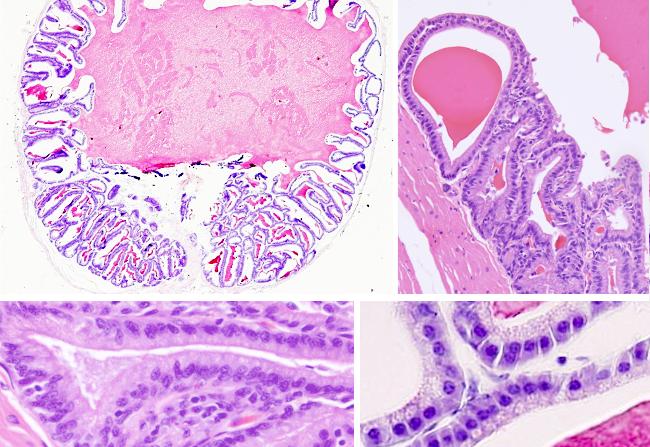 histología normal de la glándula prostática