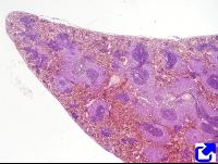 Nodulos linfaticos histologia