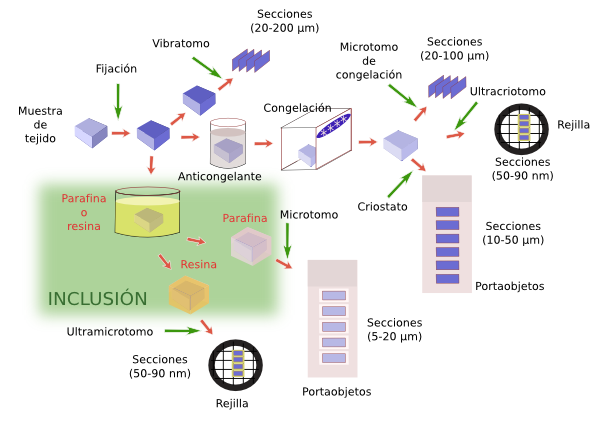 Resultado de imagen para tecnica histologica inclusion