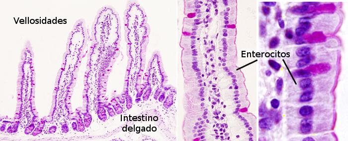 Significado de vellosidades intestinales